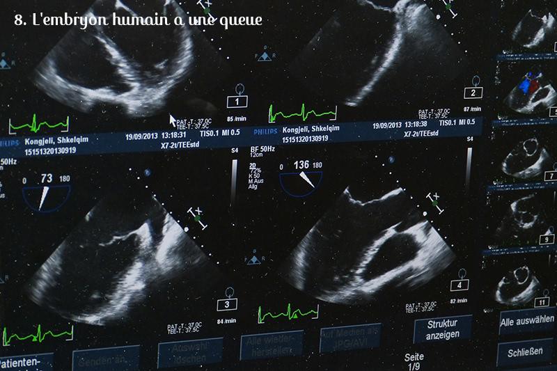 embryon queue